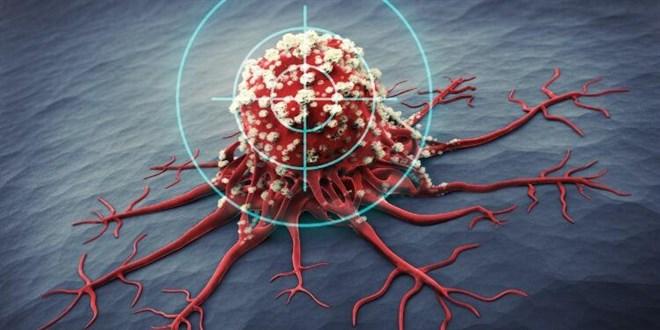 Onkoloji Uzmanı Yerlikaya: Kanser pandemisi bizi bekliyor